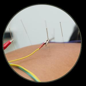 palms acupuncture treatment electro acupuncture